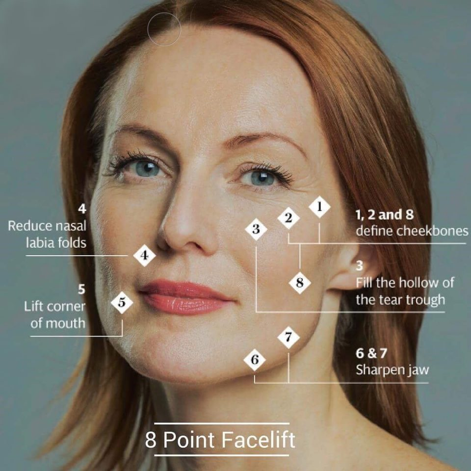Eight Points facelift with Dermal Fillers