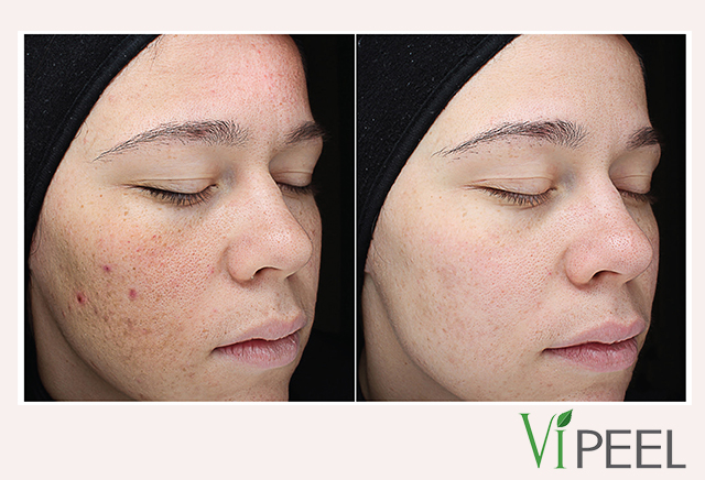 VI Chemical peel for face, neck or decolletage