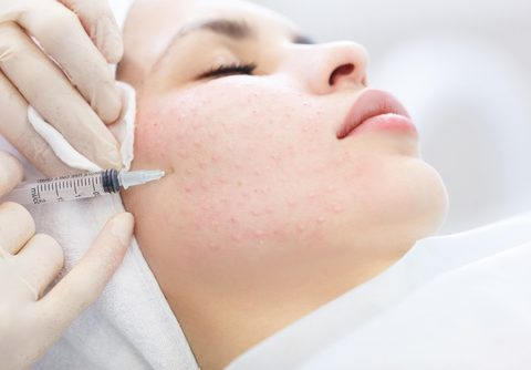 Mesotherapy for one area – face or neck or decolletage