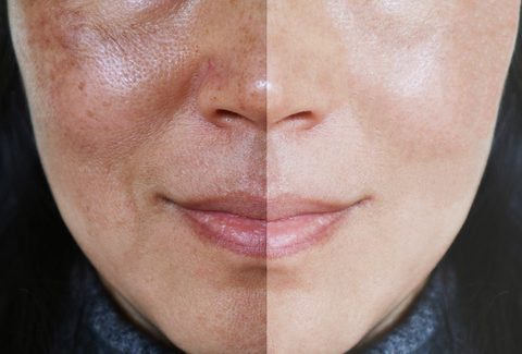 Chemical peel for face and neck