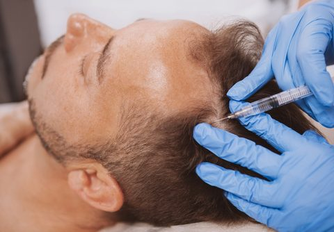 Mesotherapy for Hair loss – six sessions