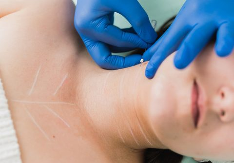 Neck Rejuvenation with PDO Beauty Threads
