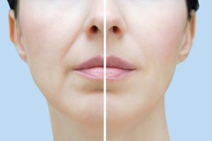 Dermal fillers for Smile or Marionette lines