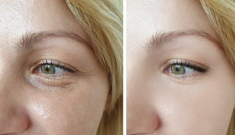 Dermal Filler – Tear trough – dark circles